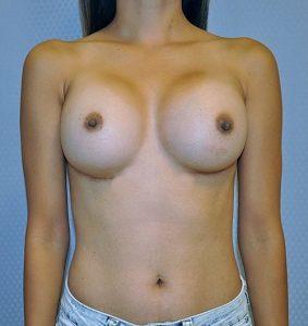 Symmastia after Augmentation Surgery