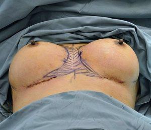 Before Symmastia Surgery