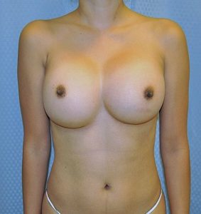 Symmastia after Augmentation Surgery: Causes, Repair and Aftercare