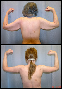Brachioplasty before and after pictures.