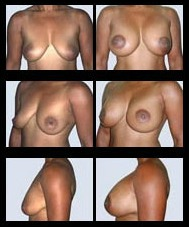 Breast Lift before and after pictures.