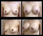 Breast Revision before and after pictures.