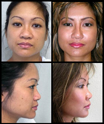 Cheek and Chin Implants before and after pictures.