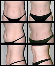 Tummy Tuck before and after pictures.
