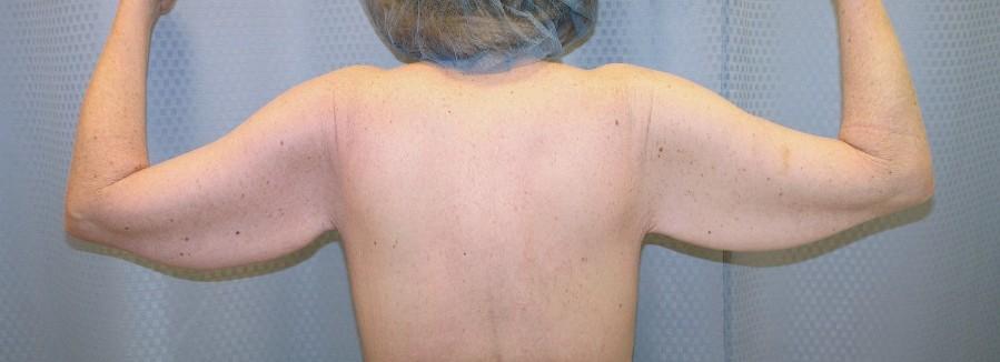 brachioplasty-arm-lift-sagging-arm-skin-claremont-upland-woman-before-back-dr-maan-kattash
