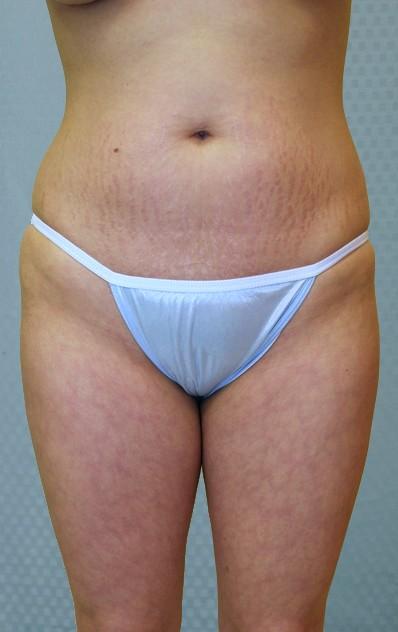 brazilian-butt-lift-augmentation-plastic-surgery-upland-victorville-woman-before-front-dr-maan-kattash