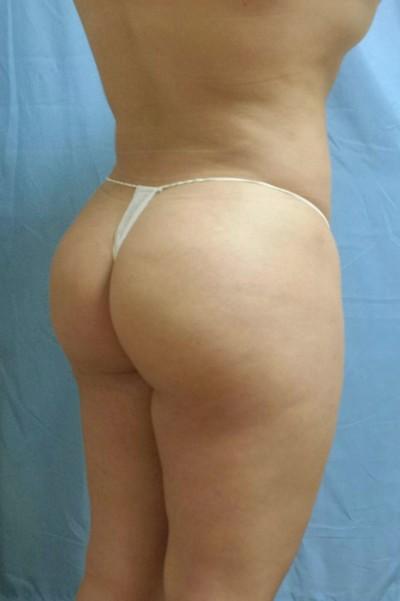 brazilian-butt-lift-cosmetic-surgery-beverly-hills-woman-after-back-dr-maan-kattash