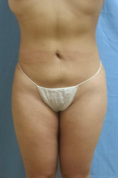 brazilian-butt-lift-cosmetic-surgery-beverly-hills-woman-after-front-dr-maan-kattash