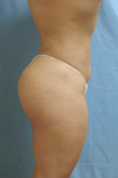 https://chinese.drkattash.com/wp-content/uploads/2017/03/brazilian-butt-lift-cosmetic-surgery-beverly-hills-woman-after-side-dr-maan-kattash-1.jpg