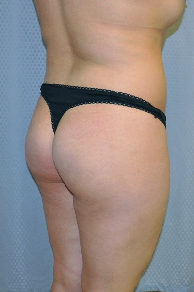 brazilian-butt-lift-cosmetic-surgery-beverly-hills-woman-before-back-dr-maan-kattash