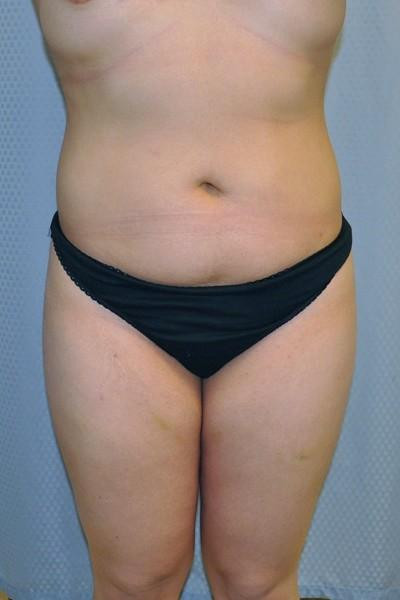 brazilian-butt-lift-cosmetic-surgery-beverly-hills-woman-before-front-dr-maan-kattash