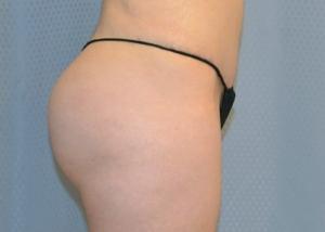 brazilian-butt-lift-cosmetic-surgery-redlands-woman-after-side-dr-maan-kattash