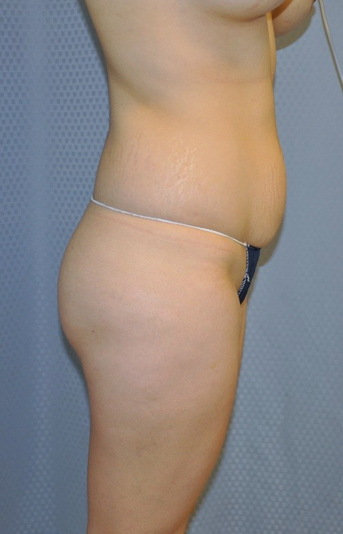 Buttock Augmentation Before and After Pictures