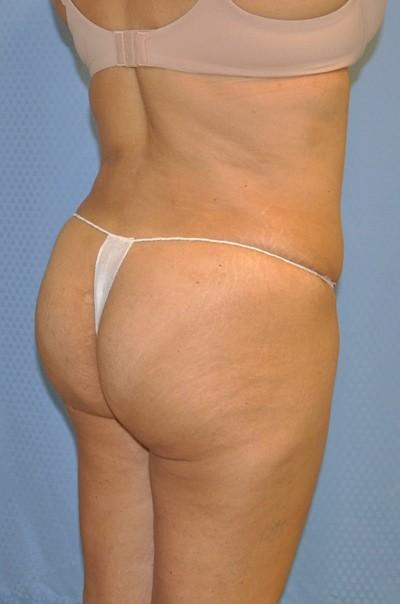 brazilian-butt-lift-plastic-cosmetic-surgery-inland-empire-woman-after-back-dr-maan-kattash