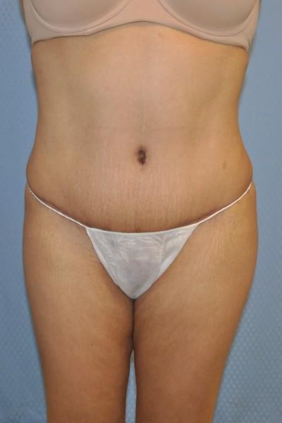 brazilian-butt-lift-plastic-cosmetic-surgery-inland-empire-woman-after-front-dr-maan-kattash