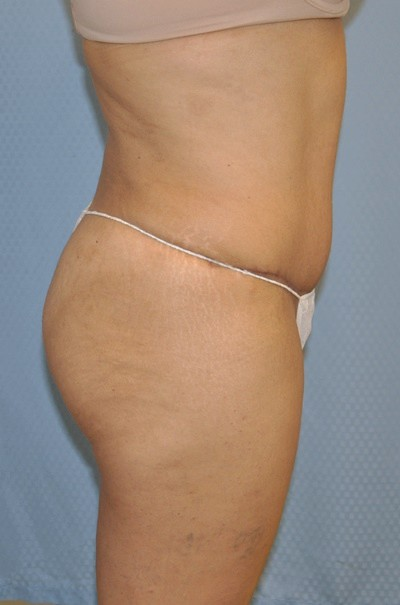 brazilian-butt-lift-plastic-cosmetic-surgery-inland-empire-woman-after-side-dr-maan-kattash
