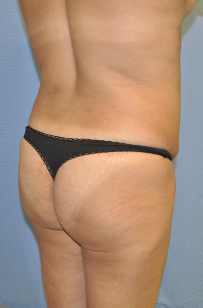 brazilian-butt-lift-plastic-cosmetic-surgery-inland-empire-woman-before-back-dr-maan-kattash