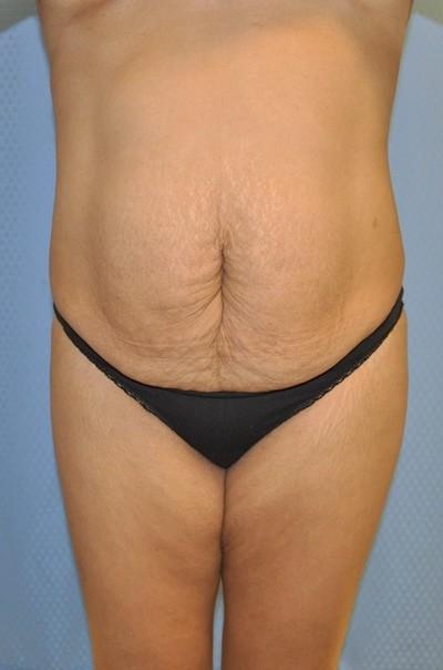 brazilian-butt-lift-plastic-cosmetic-surgery-inland-empire-woman-before-front-dr-maan-kattash