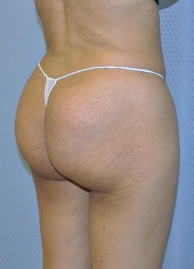 brazilian-butt-lift-plastic-surgery-beverly-hills-los-angeles-woman-after-back-dr-maan-kattash