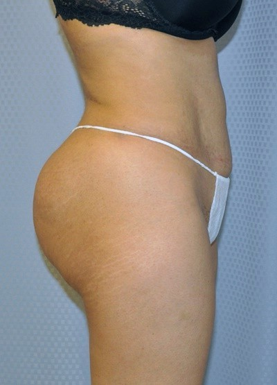 brazilian-butt-lift-plastic-surgery-beverly-hills-los-angeles-woman-after-side-dr-maan-kattash