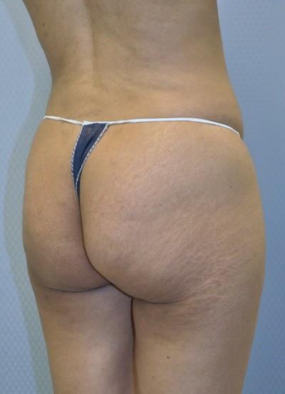 brazilian-butt-lift-plastic-surgery-beverly-hills-los-angeles-woman-before-back-dr-maan-kattash