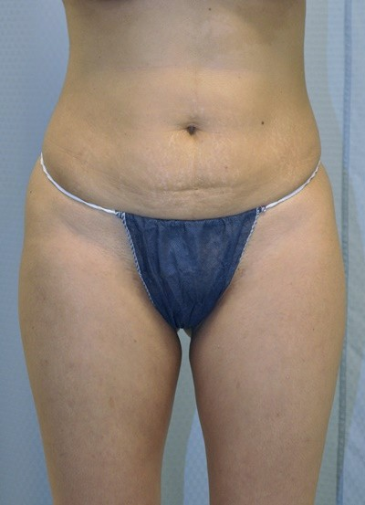 brazilian-butt-lift-plastic-surgery-beverly-hills-los-angeles-woman-before-front-dr-maan-kattash