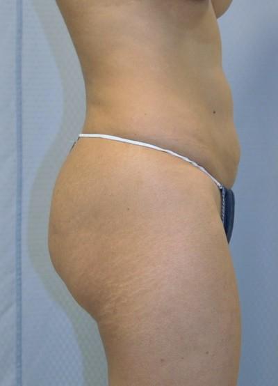 brazilian-butt-lift-plastic-surgery-beverly-hills-los-angeles-woman-before-side-dr-maan-kattash