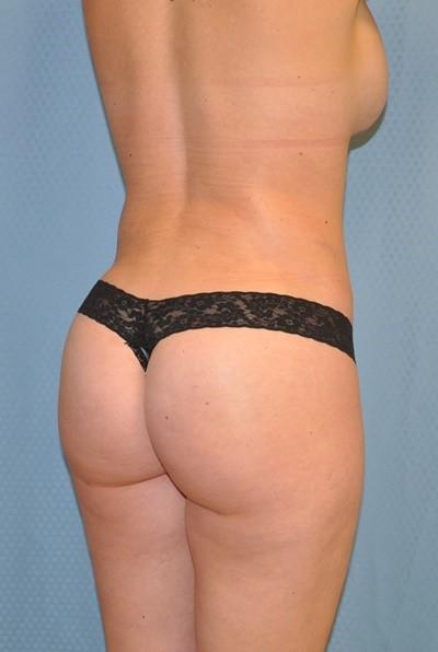 brazilian-butt-lift-plastic-surgery-irvine-woman-cosmetic-after-back-dr-maan-kattash