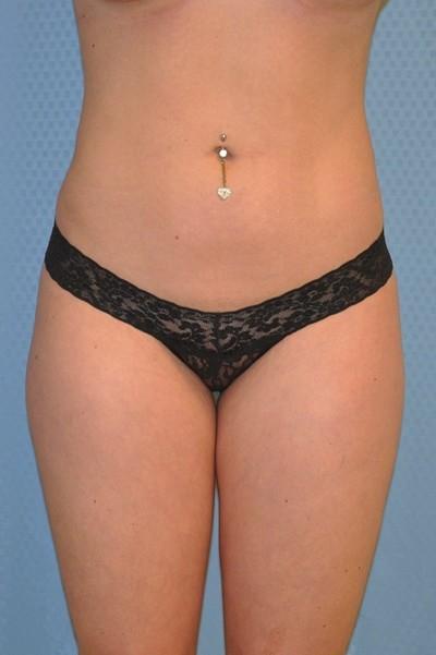 brazilian-butt-lift-plastic-surgery-irvine-woman-cosmetic-after-front-dr-maan-kattash