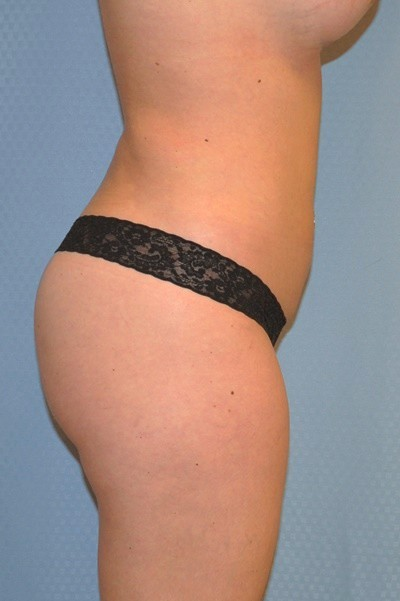 brazilian-butt-lift-plastic-surgery-irvine-woman-cosmetic-after-side-dr-maan-kattash