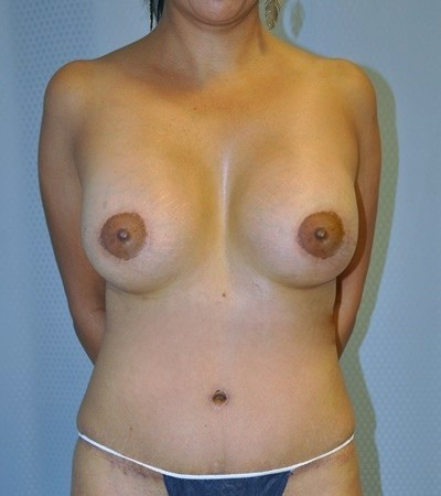 breast-augmentaion-lift-plastic-surgery-los-angeles-woman-after-front-dr-maan-kattash