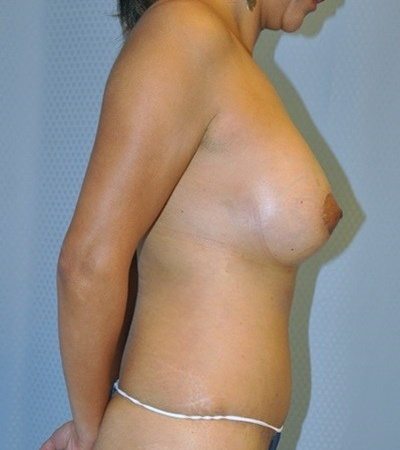 breast-augmentaion-lift-plastic-surgery-los-angeles-woman-after-side-dr-maan-kattash