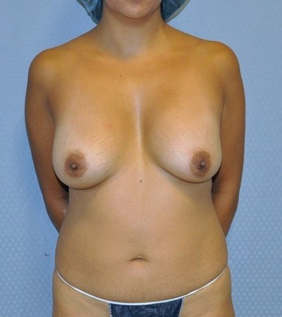 Breast Lift Before and After Pictures