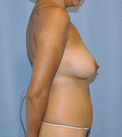 breast-augmentaion-lift-plastic-surgery-los-angeles-woman-before-side-dr-maan-kattash