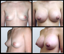 Breast Enlargement before and after pictures.