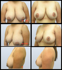 Breast Reduction before and after pictures.