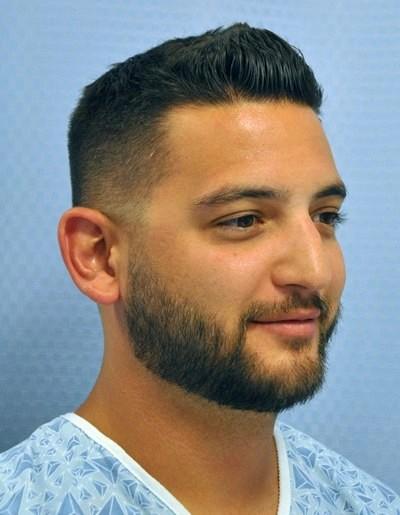 otoplasty-ear-surgery-pinning-correction-orange-county-irvine-man-before-oblique-dr-maan-kattash