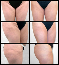 Liposuction before and after pictures.