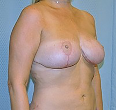 breast-reduction-plastic-surgery-upland-woman-after-oblique-dr-maan-kattash