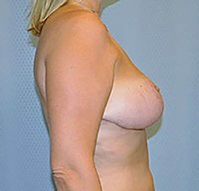 breast-reduction-plastic-surgery-upland-woman-after-side-dr-maan-kattash