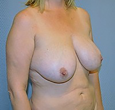 breast-reduction-plastic-surgery-upland-woman-before-oblique-dr-maan-kattash