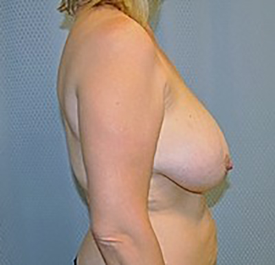 breast-reduction-plastic-surgery-upland-woman-before-side-dr-maan-kattash