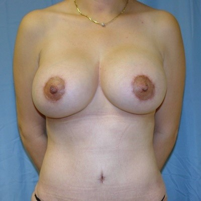 breast-revision-reconstruction-surgery-implants-los-angeles-woman-after-front-dr-maan-kattash