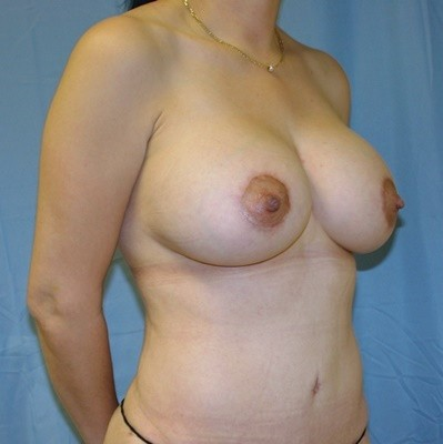 breast-revision-reconstruction-surgery-implants-los-angeles-woman-after-oblique-dr-maan-kattash