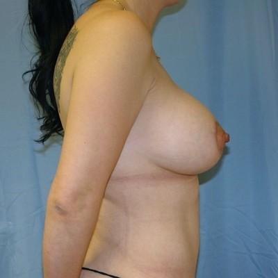 breast-revision-reconstruction-surgery-implants-los-angeles-woman-after-side-dr-maan-kattash