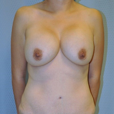 Breast Revision Before and After Pictures