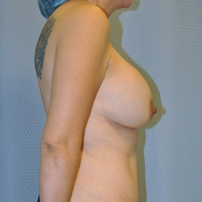 breast-revision-reconstruction-surgery-implants-los-angeles-woman-before-side-dr-maan-kattash