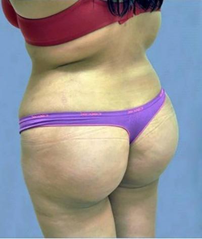 buttock-augmentation-brazilian-butt-lift-claremont-woman-after-back-dr-maan-kattash