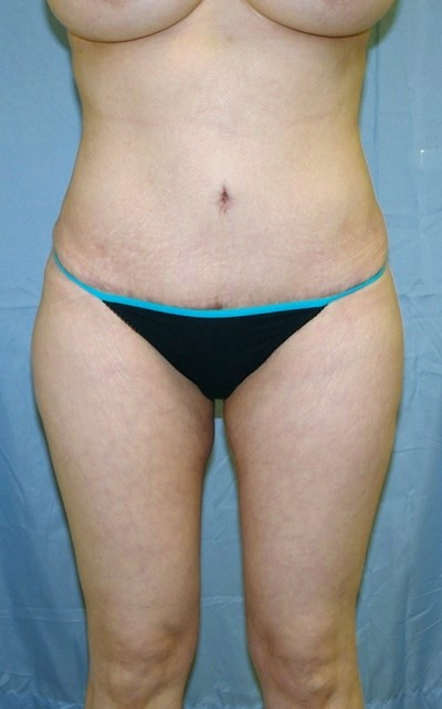 buttock-augmentation-brazilian-butt-lift-los-angeles-woman-after-front-dr-maan-kattash