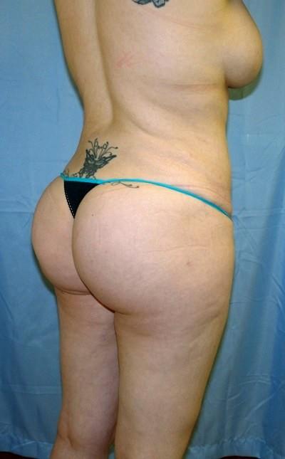 buttock-augmentation-brazilian-butt-lift-los-angeles-woman-after-oblique-dr-maan-kattash